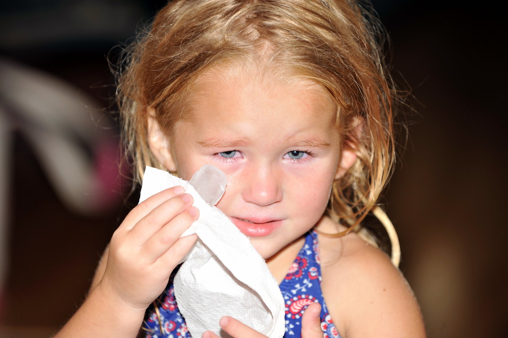 Little Girl Hurts Eye and Applies Ice to Make it Feel Better
