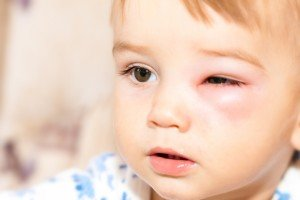 Allergies Little Boy - Dangerous Stings From Wasps Near The Eye